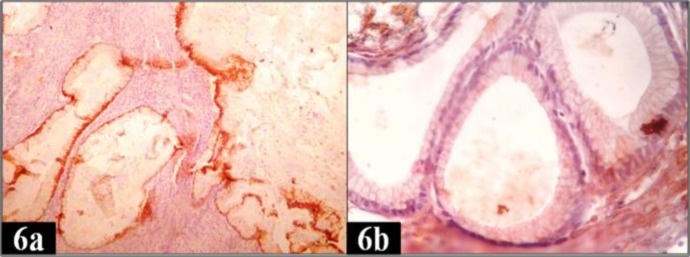 IHC expression of CK AE1/AE3 and vimentin in borderline mucinous tumor of ovary