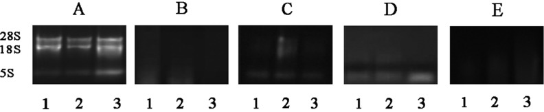 1.0% agarose gel electrophoresis of total RNA isolated. A, three intact RNA bands for 28S, 18S and 5S RNA. Lane 1, lane 2 and lane 3 in A, B, C, D and E contain 1 μg of total RNA from D . huoshanense stem, leaf and flower, respectively. A: modified CHAN method; B: original CHAN method; C: Trizol method; D: RNeasy Plant Mini Kit method; E: RNAprep Pure Plant Kit method.