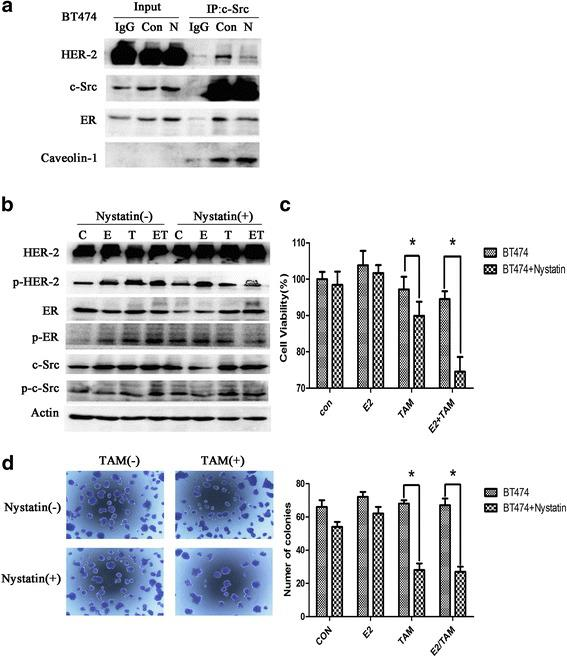 Inhibition of lipid rafts suppresses the formation of the ER-c-Src-HER2 complex and partially restores tamoxifen sensitivity. a BT474 cells were treated with vehicle (Con) or nystatin (N) (5 μg/ml) for 2 h and subjected to immunoprecipitation and immunoblotting analysis as indicated. b Cells were seeded in 6-well plates (2.5 × 10 4 cells/well) for 24 h and then treated with vehicle or nystatin(5 μg/ml) for 2 h, followed by treatment with vehicle, E2(10 nmol/L), TAM(1 μmol/L), or the combination for 4 h. c Cells were seeded in 96-well plates (5000 cells/well). At 24 h after plating, cells were treated with vehicle or nystatin (5 μg/ml) for 2 h, and then treated with vehicle, E2(10 nmol/L), TAM(1 μmol/L), or the combination. After 48 h, MTT assays were performed. The bar graph shows the sensitivity of BT474 cells to tamoxifen before and after treatment with nystatin. Data represent the mean ± SD of at least three independent experiments. P values were determined by the Student's t test. (* p