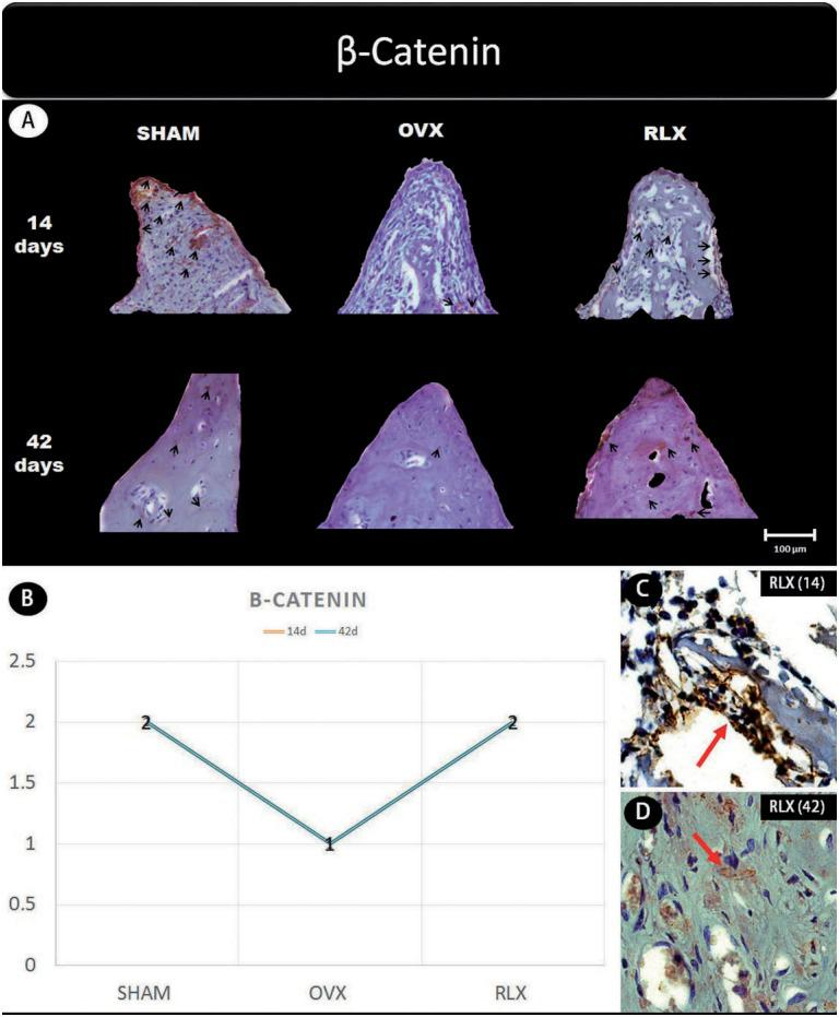 (A) Photomicrographs in a higher original objective (x40) of the different groups (SHAM, OVX, and RLX) and periods (14 and 42 days), in which is possible to observe an increased area of diaminobenzidine-stained cells (brown areas) around the peri-implant bone where the biomarker β-catenin were intense, represented by black arrows, denoting an improvement in the bone formation; (B) The chart shows the scores submitted to the Kappa test, in which the index was adjusted to > 0.8, representing the expression of β-catenin among the groups and in both periods; (C and D) Photomicrographs in a higher original objective (x100) about the 14 and 42 days of peri-implant bone healing from RLX group showing a moderate labeling of the biomarker β-catenin represented by red arrows