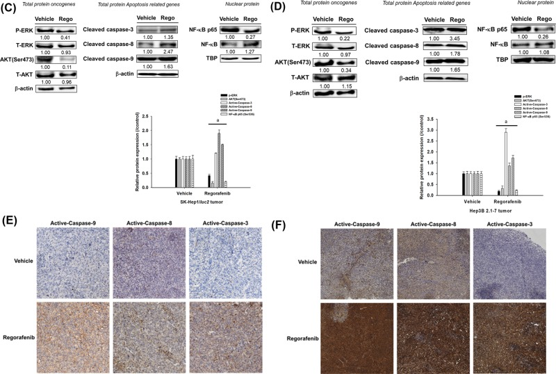 Effect of regorafenib on expression of P-ERK, AKT (Ser473), NF-κB p65 (Ser473), and NF-κB-modulated downstream effector proteins in SK-Hep1/ luc2 tumor and Hep3B 2.1-7 bearing mice Mice were killed on day 14 after treatments and protein levels in tumor tissues were evaluated with IHC staining. ( A ) Protein levels of MMP-9, VEGF, MCL-1, XIAP, C-FLIP, Cyclin-D1, and P-ERK, AKT (Ser473), NF-κB p65 (Ser473) on SK-Hep1/ luc2 tumor by IHC. ( B ) IHC staining of Hep3B 2.1-7 tumor. ( C ) Phosphorylation oncogenes and apoptosis-related cleavage proteins expression which validated by Western blotting on SK-Hep1/ luc2 tumor. ( D ) Western blotting of Hep3B 2.1-7 tumor. ( E ) Expression of antiapoptotic proteins (active Capase-9, -8, and -3) on SK-Hep1/ luc2 tumor by IHC. ( F ) IHC staining of Hep3B 2.1-7 tumor; a P