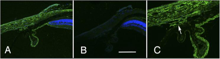 The distribution of cadherin 11 in the limbal area of the eye is illustrated. The section in A was stained with an antibody specific to cadherin 11 (green) and for DNA (blue). This staining is specific to the primary antibody for it is not observed in a section stained with the secondary antibody alone (B). The staining pattern of the trabecular meshwork is shown at higher magnification in C (arrow). A and B are taken at the same magnification and the scale bar in panel B represents 25 µm.