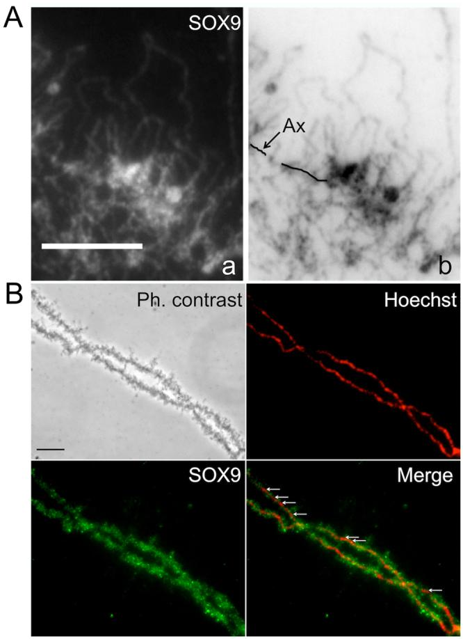 SOX9 protein does not bind the chromosome axis of the LBCs. Immunostaining of P. waltl nuclear spreads using the anti-Cter-SOX9 antibody (green, Alexa 488 IgG) and counterstained with Hoechst (red). ( A ) Fluorescent micrograph (a) and its corresponding negative (b) showing a strong SOX9 immunostaining detected in the close vicinity of the chromosome axis over the thickest region of the lateral loops ( B ) Nuclear spreads from an oocyte at the end of stage VI. The SOX9 protein was not detected at the level of the chromosome axis where it was devoid of lateral loops (white arrows, merge panel). Scale bar for all micrographs: 10 μm.