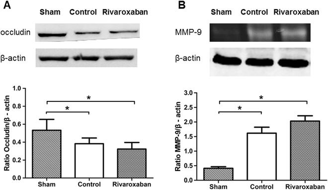 Effects of Rivaroxaban on occludin expression and MMP-9 activity in rats. ( A ) A representative western blot showing changes in occludin expression (n = 6 in each group). Both the Control and Rivaroxaban groups have significantly lower occludin expression level than the Sham group (* P
