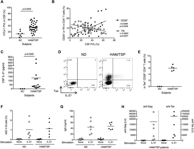 Involvement of CD4 + CD25 + T cells with B cell help in CSF of HAM/TSP patients. (A) Comparison of HTLV-1 PVL in CSF of ACs (n = 7) and HAM/TSP patients (n = 36) using Mann-Whitney Test. (B) Correlation of HTLV-1 PVL with CD4 + CD25 + T cells and memory Tfh cells in HTLV-1-infected subjects using Spearman's rank correlation test. (C) Comparison of IL-21 in CSF of HAM/TSP patients and ACs using unpaired t test. (D) Representative dot plots of IL-21 and Tax staining in CD4 + CD25 + T cells of a ND and a HAM/TSP patient after culture for 24 hours without any exogenous stimulation. (E) Detection of IL-21 in Tax-expressing CD4 + CD25 + T cells of HAM/TSP patients after culture for 24 hours without any exogenous stimulation. (F) Generation of ASCs subsets in B cells cultured with and without rhIL-21. Th e data were obtained from cultured B cells of NDs and HAM/TSP patients (n = 6). The horizontal line represents the mean. (G) Detection of human IgG in the B cell culture supernatants of NDs and HAM/TSP patients. (H) Detection of antibodies for HTLV-1 Gag and Tax in the B cell culture supernatants of HAM/TSP patients.