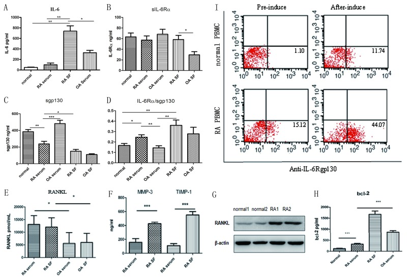 Analysis of IL-6/IL-6Rα/gp130 expression levels and RANKL in patients with RA (A) IL-6 levels in RA SF and in the control, OA, and RA serum. (B, C) sIL-6Rα and sgp130 levels in the control, OA, and RA serum and in the OA and RA SF. (D) Analysis of the sIL-6Rα and sgp130 ratio. (E) ELISA determination of soluble RANKL concentrations in RA and OA serum and SF. (F) Detection of MMP3 and TIMP1 in RA or OA serum and SF. (G) Western blot detection of RANKL expression in the bone tissues of patients with RA and the controls. (H) Bcl-2 levels in RA SF and in control, OA, and RA serum. (I) gp130 expression in the cells from the controls and patients with RA after 10-day induction with RANKL and GM-CSF; the percentage of gp130-positive cells was detected.