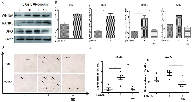 Changes in IL-6/sIL-6Rα–induced RANKL and WNT5A expression after M10 pretreatment of RA FLS (A) Western blot detection of WNT5A and RANKL expression in RA FLS following 3-day stimulation with IL-6 and sIL-6Rα. (B) Real-time PCR determination of RANKL and WNT5A mRNA in RA FLS following 3-day stimulation with IL-6 and sIL-6Rα. (C) Real-time PCR determination of RANKL and WNT5A mRNA in RA FLS pretreated with M10, and then cultured with IL-6/sIL-6Rα for 72 h. Data are normalized to β-actin and reported in relative expression units. (D) Immunostaining of RA FLS pretreated with M10 and cultured with IL-6/sIL-6Rα for 72 h (×200 magnification). Figures are representative of three independent experiments. (E) The number of RANKL- and WNT5A-positive staining cells.