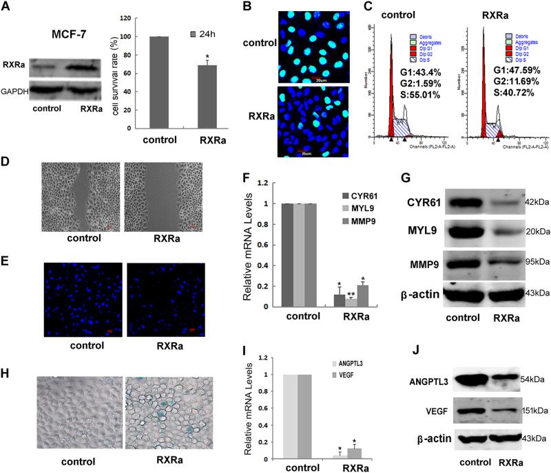 """RXR overexpression in cancer cells inhibited proliferation, migration, and angiogenesis. a MTT assay and b EdU assay of MCF-7 transfected with RXRα after 48 h. c Flow cytometry detection of the cell cycle distribution of MCF-7 48 h after transfecting with RXRα. The migratory ability of MCF-7 overexpressing RXRα was determined via wound healing ( d ) and transwell chamber assays ( e ) as described in """"Materials and methods""""). The expression of Cyr61, Myl9, and MMP9 examined by qRT-PCR ( f ) and western blotting ( g ). h SA-β-galactosidase staining assay of parental and RXRα overexpression MCF-7 cells. i The expressions of ANGPTL3 and VEGF were examined by qRT-PCR ( j ) and western blotting ( k ) in MCF-7 overexpressing RXRα. Shown are the means ± SD from three independent experiments (* P"""