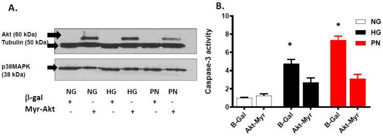 Overexpression of Myr-Akt attenuates proapoptotic effect of high glucose and peroxynitrite. ( A ) Representative Western blot showing selective expression of Akt in retinal EC cultures transfected with constitutively active Akt (Myr-Akt), but not in cultures transfected with adenovirus construct of β-galactosidase (β-Gal). Overexpression of Myr-Akt decreased expression of p38 MAPK. These observations were consistent in ECs cultured in normal glucose (NG, 5 mM), high glucose (HG, 25 mM) for 3 days, or peroxynitrite (PN, 0.5 mM) for overnight. ( B ) Statistical analysis of caspase-3 activity using two-way ANOVA showed significant effect of apoptotic insult and for treatment. Overexpression of Myr-Akt significantly reduced HG- or PN-induced increase in caspase-3 activity compared to EC cultures transfected with β-Gal (* p