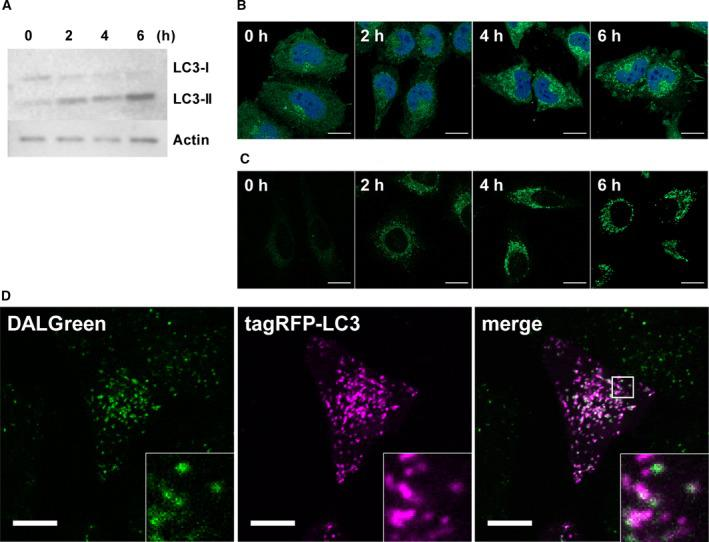 (A–C) HeLa cells stimulating by nutrient‐deprivation were analyzed in every 2 h. Bars = 20 μm. (A) Relative expression level of LC 3‐I and LC 3‐ II were detected using with anti‐ LC 3 antibody and <t>anti‐actin</t> antibody for loading control of western blotting analysis. (B) Immunocytochemical analysis with anti‐ LC 3 antibodies (Green) and DAPI (Blue). (C) Live‐cell imaging with 1 μ m DALG reen staining. (D) Live‐cell imaging of 4 h rapamycin treated HeLa cells colabeling with 1 μ m DALG reen and tag RFP ‐ LC 3. Bars = 10 μm.
