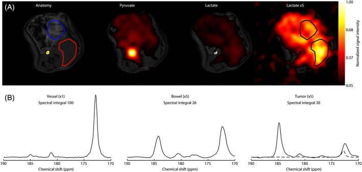 Images of pyruvate and lactate acquired 15 s after injection of hyperpolarized [1‐ 13 C]pyruvate in a tumor‐bearing mouse (A). The grayscale image is an anatomical  1 H image of tissue water. The blood vessel (yellow), tumor (red) and bowel (blue) regions are outlined. The false‐color images show the intensities of the pyruvate (172.9 ppm) and lactate (185.1 ppm) signals normalized to the maximum pyruvate signal in the slice. A lactate image from the same slice, multiplied by a factor of five, is also shown. Summed spectra from the blood vessel, bowel and tumor regions are shown below the corresponding images (B). The  y ‐scale for the bowel and tumor spectra has been multiplied by a factor of five to aid visualization. The broken line in the tumor spectrum shows the blood vessel spectrum, which has been scaled to take account of the fact that the blood volume is ~2% of the tumor volume