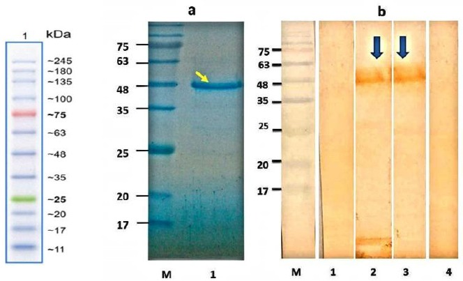 SDS-PAGE analysis of purified antigen and Western blot analysis of rDgK antigen. (a) Purified protein was loaded on 12% acrylamide gel, stained with Coomassie brilliant blue R-250. Lane M, protein molecular standard; lane 1, SDS-PAGE of purified recombinant protein (arrow). (b) Lane M, protein molecular standard; lane 1, Western blotting of expressed rDgK probed with (lane 1) the negative control pool sera, (lane 2) suspected dog pool sera, and (lane 3) the positive-control serum pools (arrows). Lane 4 indicates total protein of untransformed E. coli BL21 in Western blot with the positive-control serum pools.
