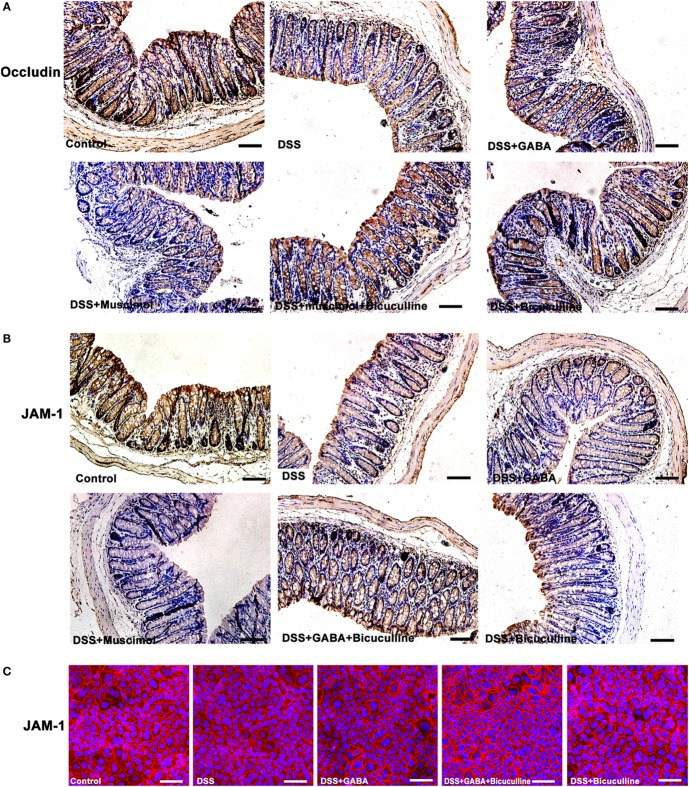 Gamma-aminobutyric acid (GABA) reduces the expression of occludin and junctional adhesion molecule 1 (JAM-1) in mice. (A) Representative immunohistochemical data for occludin staining (brown) in colon mucosa within the different groups, scale bar 100 μm. (B) Representative immunohistochemical data for JAM-1 staining (brown) in colon mucosa within the different groups, scale bar 100 μm. (C) Representative immunofluorescence staining of JAM-1 (red) in DSS-treated Caco-2 cells with or without GABA, scale bar 25 μm.
