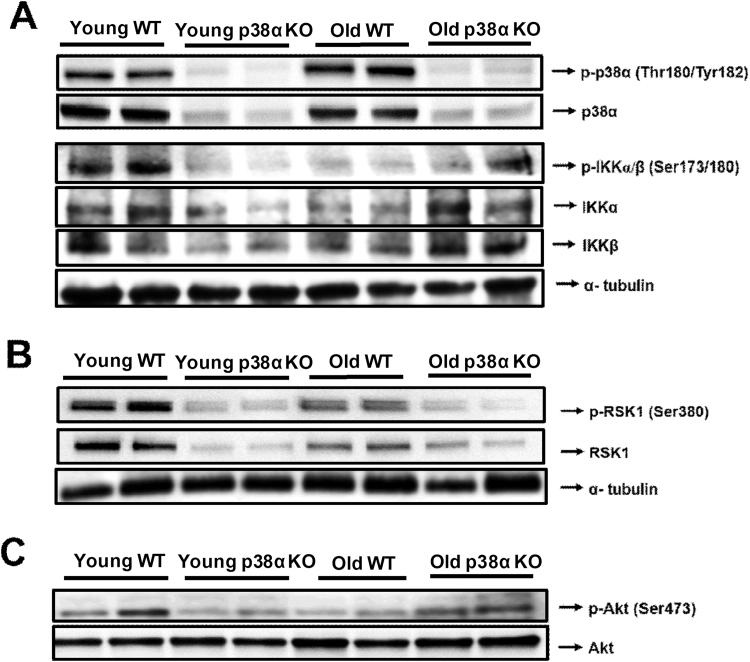 Representative image of western blotting of p-p38α (Thr180/Tyr182), p38α, p-IKKα/β (Ser173/180), IKKα and IKKβ in the liver of young WT and p38α KO mice and in the liver of old WT and p38α KO mice. α-tubulin was used as a loading control (A). Representative image of western blotting of p-Rsk1 (Ser380) and Rsk-1 in the liver of young WT and p38α KO mice and in the liver of old WT and p38α KO mice. α-tubulin was used as a loading control (B). Representative image of western blotting of p-Akt (Ser473) and Akt in the liver of young WT and p38α KO mice and in the liver of old WT and p38α KO mice (C). The number of samples per group was 4.