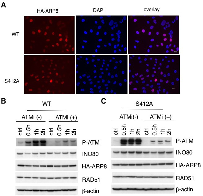 Establishment of stable and inducible ARP8 expressing 11–4 Flp-In cells. ( A ) Immunofluorescence staining of 11–4 Flp-In cells expressing HA-tagged wild-type ARP8 (WT) or S412 phospho-deficient ARP8 (SA). For induction of HA-ARP8 expression, tetracycline was added for 24 hr. The anti-HA antibody was used to identify the expression of HA-ARP8. DAPI was used for DNA staining. ( B and C ) Immunoblotting analysis of phosphorylated-ATM, and expression level of INO80 and RAD51 in 11–4 Flp-In cells. The endogenous ARP8-depleted11-4 Flp-In cells with tetracycline inducible expression of siRNA-resistant wild-type (WT) ( B ) or S412A ARP8 (S412A) ( C ), were treated with/without 10 μM ATM inhibitor for 2 hr, before DMSO (ctrl) or etoposide treatment. The cells were harvested at the indicated time point after etoposide removal. β-actin is shown as a loading control.
