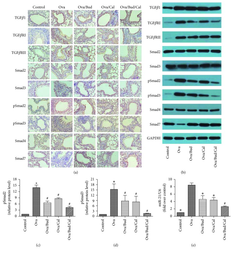Effect of budesonide (Bud) and calcitriol (Cal) on the expression of the TGF β /Smad signaling pathway-related proteins and miR-21 in ovalbumin- (Ova-) treated mice. (a) The lung tissue of the mice was fixed, embedded, and sectioned for immunohistochemical staining (DAB stain, original magnification ×400). (b) The total protein was extracted from the lung tissue of mice for Western blot analysis. (c, d) The expression of pSmad2 and pSmad3 in the lung tissue of mice was determined by Western blot analysis, with GAPDH as an internal reference ( ∗ P