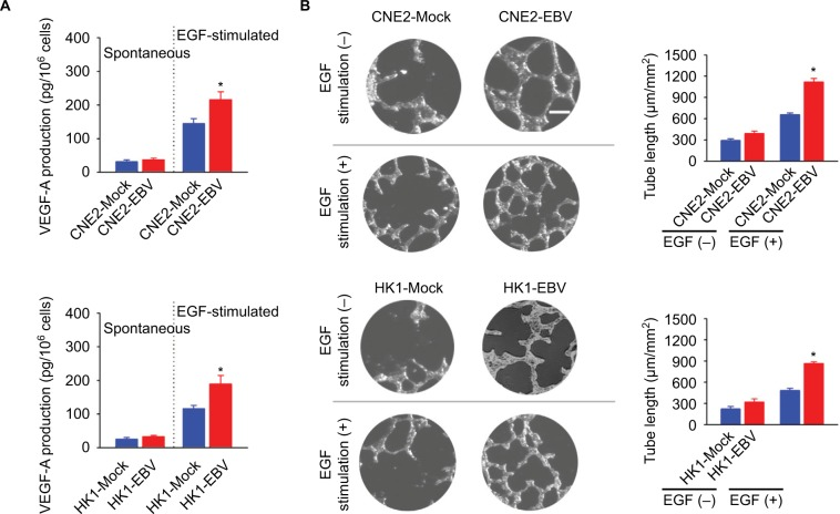 EBV infection promotes EGF-stimulated VEGF production and endothelial tube formation. Notes: ( A ) VEGF-A production was determined in the mock-controlled and the EBV-infected CNE2 or HK1 cell-conditioned medium. The amount of VEGF released from the serum-starved cells in the absence or presence of extracellular EGF stimulation was determined by ELISA. ( B ) HUVECs were incubated with the cell-conditioned medium as indicated. Representative photographs of HUVEC tube formation were captured at 6 hours after cell seeding; scale bar =100 μm. The tube formation was quantitatively evaluated by calculating the tube length per standard area in each well (right panel). The data are representative of three independent experiments and are presented as the mean ± SEM (* P