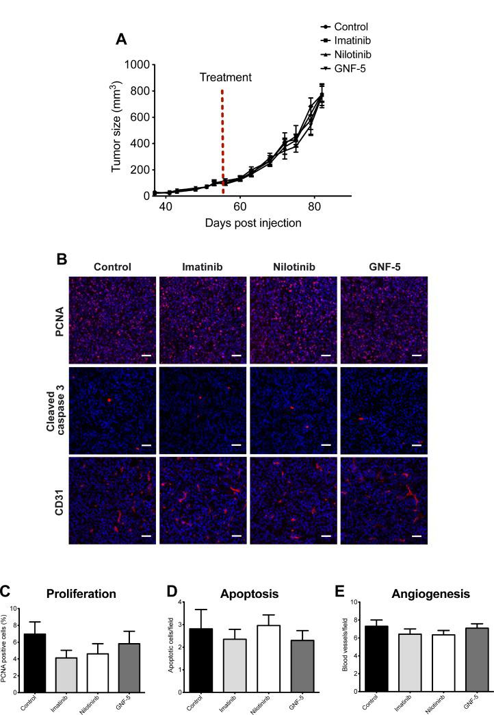 Primary tumor growth is not affected by ABL kinase inhibitors MDA-MB 231/Dendra2 cells were injected into the mammary fat pad of 10-week-old SCID female mice and allowed to grow until the tumor reached the size of 100 mm 3 . At day 56 following injection, mice were treated by oral gavage with vehicle (5% DMSO, 2% hydroxypropyl cellulose, 0.5% Tween-80), 100 mg/kg imatinib, 70 mg/kg nilotinib or 100 mg/kg GNF-5 once a day, 5 days a week, for four weeks. ( A ) Time-dependent tumor growth. Tumor growth was assessed twice a week by measuring two perpendicular diameters and calculating tumor size in mm 3 . Treatment initiation is shown as red dotted line. n = 12 (vehicle), n = 10 (imatinib), n = 12 (nilotinib), n = 10 (GNF-5) mice per group from two independent experiments. ( B ) Primary tumors were dissected at the end of experiment and subjected to immunohistochemistry. Representative images of primary tumor sections stained with anti-PCNA (proliferation), anti-cleaved caspase 3 (apoptosis), and anti-CD31 (angiogenesis). ( C ) Quantification of PCNA positive cells (red/pink) normalized to DAPI positive cells (blue). The average percentage of proliferating cells in total cells per field is shown. ( D ) Quantification of apoptotic cells (cleaved caspase 3 positive cells). Shown is the number of apoptotic cells per field. ( E ) Quantification of CD-31 positive blood vessels. For all quantifications, n = 50 random fields from 5 tumors per condition. Bar, 100 µm.