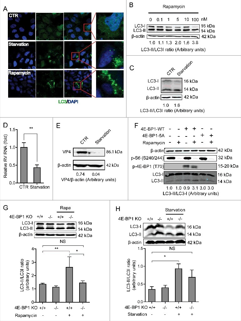 4E-BP1 mediates rapamycin-induced autophagy that inhibits rotavirus infection. (A) Caco2 cells transduced with lentiviral particles carrying a construct of TagGFP2-LC3 driven by the elongation factor-1 promotor were cultured at 37°C for 48 h in DMEM medium containing EBSS medium containing 1mM <t>pepstatin</t> A and E-64-d solution (for starvation) and 10 nM rapamycin. LC3-positive puncta was observed by confocal laser microscopy. (B) LC3-I and LC3-II protein levels were examined by western blot analysis. Protein samples were extracted from Caco2 cells treated with indicated concentrations of rapamycin (48 h). Quantification of the intensity of the immunoreactive bands of both LC3-I and LC3-II was performed using Odyssey V3.0 software. Densitometric analysis of immunoblots of LC3 was expressed as the ratio of LC3-II to LC3-I, and the ratio of LC3II/LC3I was expressed in arbitrary units. (C) Western blot visualized LC3-I and LC3-II protein levels in starvation (EBSS medium containing 1mM pepstatin A and E-64-d solution) treated Caco2 cells. The ratio of LC3II/LC3I was expressed in arbitrary units. (D) Starvation significantly inhibited rotavirus RNA in Caco2 cells (n = 6, mean ± SEM, *P