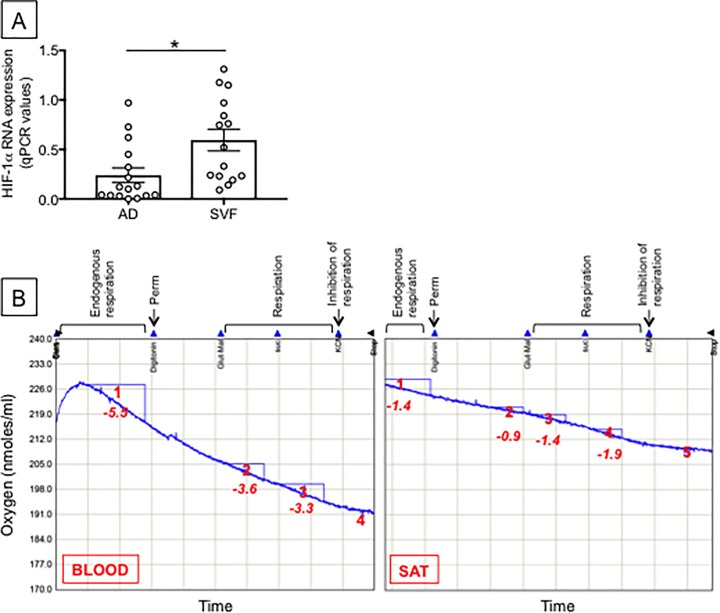 Measure of hypoxia in the obese SAT versus blood. A. Hypoxia was measured by RNA expression of HIF-1α in adipocytes (AD) and SVF from the same individuals. AD were sonicated for cell disruption in the presence of TRIzol. The SVF was also resuspended in TRIzol. AD and SVF were from the same individuals. Results show qPCR values (2 -ΔΔCt ) of HIF-1α RNA expression. Mean comparisons between groups were performed by Student's t test (two-tailed). *p