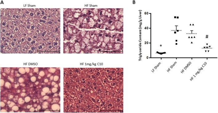 C10 prevents HF diet-induced hepatic steatosis. Hematoxylin and eosin staining was performed on liver tissue sections prepared after 18 weeks of HF diet feeding. Liver triglyceride content was determined by biochemical analysis (A) Histological examination revealed that C10 prevents hepatic lipid accumulation. All images in (A) were taken at 400× magnification. Scale bar, 40 µm. (B) Treatment with C10 decreased hepatic triglyceride content when compared to HF-fed sham and DMSO groups but had no effect on serum triglyceride levels. Dotted lines represent the mean and error bars indicate + s.e.m. Significance was determined using ANOVA followed by Tukey's post hoc analysis for multiple comparison; *Different from HF-fed groups; P