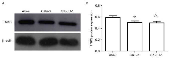 Expression of TNKS in three lung adenocarcinoma cell lines. (A) Western blot analysis and (B) quantification of this analysis demonstrated that the level of TNKS protein expression in A549 cells was significantly higher compared with that in Calu-3 and SK-LU-1 cells. *P
