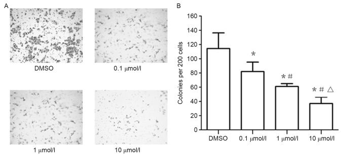 (A) XAV939 inhibits the clonogenicity of A549 cells in vitro . (B) Treatment of the A549 cell line with 0.1, 1 and 10 µmol/l XAV939 significantly inhibited colony formation compared with the control. *P