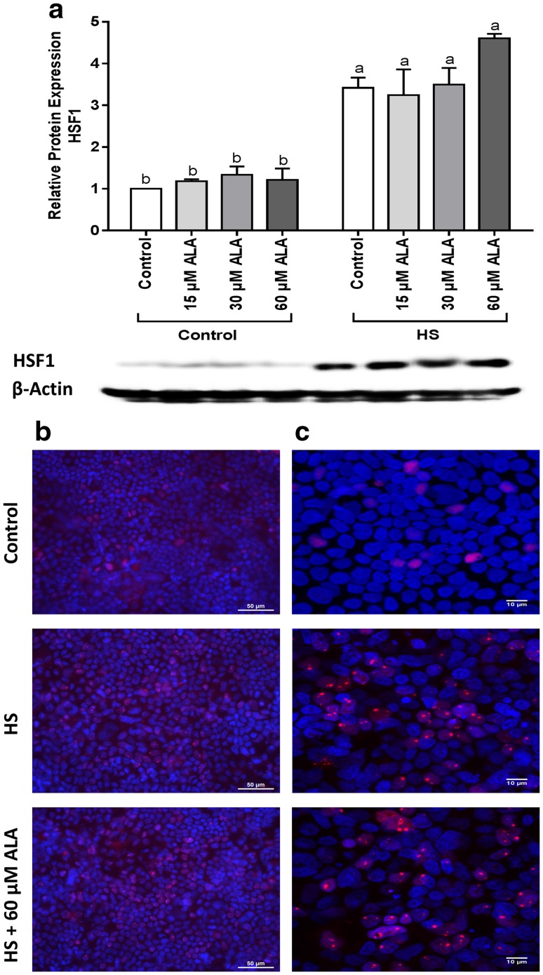 HS upregulates the HSF1 protein expression and induces HSF1 nuclear granules. Caco-2 cells grown on inserts and pretreated with ALA (24 h) were exposed to HS (42 °C, 6 h). HSF1 protein expression (normalized with β-actin) relative to unstimulated cells evaluated by WB analysis ( a ), is expressed as mean ± SEM of three independent experiments. Different lower case letters denote significant differences among groups. Localization of HSF1 was visualized by immunofluorescence staining. Objective ×40 ( b ) and ×63 ( c )