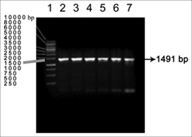 PCR amplification of E.coli DH5α clones Lane 2 to 7 –positive amplicons Lane1- DNA marker