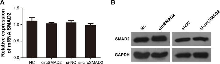 <t>QRT-PCR</t> and Western blot assays showed no significant changes in the mRNA ( A ) or protein levels ( B ) of SMAD2 in overexpressed or knocked down circSMAD2 HepG2 cells. Note: Data are presented as mean ± SEM. Abbreviations: QRT-PCR, quantitative real-time polymerase chain reaction; circSMAD2, circRNA SMAD2; SEM, standard error of the mean; NC, negative control; GAPDH, glyceraldehyde 3-phosphate dehydrogenase.