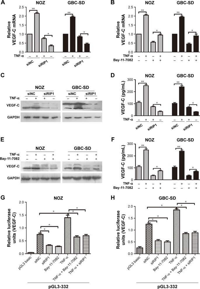 RIP1 regulates TNF-α-mediated VEGF-C expression through the NF-κB pathway. Notes: ( A , C , D ) The VEGF-C mRNA and protein in the siNC and siRIP1 cell groups were extracted and examined via qPCR, Western blotting, and ELISA afterbeing stimulated with 50 ng/mL of recombinant human TNF-α or left unstimulated for 24 h. ( B , E , F ) The qPCR, immunoblotting, and ELISA analyses indicated that Bay-11-7082 abolished the TNF-α-mediated induction of VEGF-C mRNA and protein expression in NOZ and GBC-SD cells. ( G , H ) Luciferase activity assays showed that siRIP1 and Bay-11-7082 significantly impaired TNF-α-enhanced pGL3B-332 (containing the VEGF-C promoter sequence) luciferase activity. A, B, D, F, G and H; n=3, mean±SEM; * p