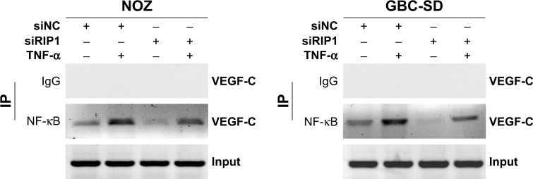 Knockdown of RIP1 impaired the TNF-α-enhanced association of NF-κB with the VEGF-C promoter region. Notes: Chromatin was extracted from the siNC and siRIP1 cell groups and sheared after the cells were stimulated with 50 ng/mL of recombinant human TNF-α or left unstimulated for 24 h. NF-κB immunoprecipitation reactions were performed with 5 µg of NF-κB antibody; the VEGF-C promoter fragment (−389/−278) containing the NF-κB binding sites in the immunoprecipitated and the input samples was amplified with the appropriate primers. Rabbit serum was used as a negative control. Abbreviations: TNF-α, tumor necrosis factor alpha; VEGF, vascular endothelial growth factor; IP, immunoprecipitation.