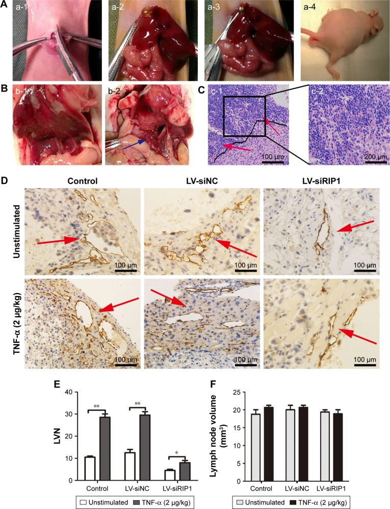 Knockdown of RIP1 in GBC cells impaired TNF-α-mediated lymphatic vessel formation and metastasis in vivo. Notes: ( A ) The operation performed in the murine transplantation model of GBC. (a-1) The ventral skin was opened. (a-2) The gallbladder was exposed. (a-3) The three established cell groups (NOZ-control, NOZ-LV-siNC, and NOZ-LV-siRIP1) were implanted into the gallbladder. (a-4) The nude mice presented with dyscrasia; scale bars =5 mm. ( B ) Metastatic lymph nodes (blue arrows) were primarily localized to the hepatoduodenal ligament. (b-1) (−), (b-2) (+, blue arrows); scale bars =5 mm. ( C ) Hematoxylin and eosin staining (c-1: 100×, (c-2): 200×): cancer cell invasion (red arrows) was detected via the lymphoid follicles. ( D ) The tumor lymphatic vessels (red arrows) were analyzed via immunohistochemical staining using an LYVE-1 antibody (100×). ( E ) The LVN of the orthotopic xenograft tumors was counted. ( F ) The size of the lymph nodes was counted (E and F; n=5, mean±SEM). * p