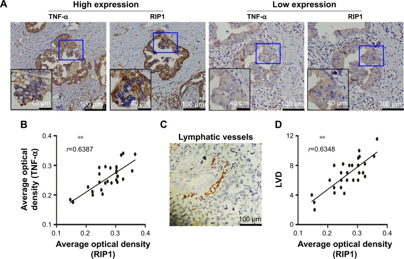 Relationships of RIP1 with <t>TNF-α</t> and LVD in human GBC patients. Notes: ( A ) TNF-α and RIP1 protein expression and lymphatic vessel expression in GBC tissues were analyzed using immunohistochemical staining using TNF-α, RIP1, and D2-40 antibodies, respectively (100×; 200×). ( B , D ) Relationships of the average optical density of RIP1 with optical density of TNF-α and LVD in the GBC samples. ( C ) Lymphatic vessels based on D2-40 immunostaining were flattened and invaded by GBC cells. ** p
