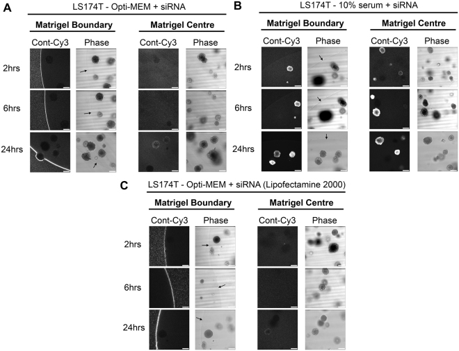 Failure of Opti-MEM prepared siRNA to penetrate matrigel or organoids is not cell line or transfection reagent specific. ( A ) Representative confocal images of LS174T spheroids showing localization of control-Cy3 siRNA formed in Opti-MEM using RNAiMax at 2, 6 and 24 hours post transfection. ( B ) Representative confocal images of LS174T spheroids showing localization of control-Cy3 siRNA formed in 10% serum using RNAiMax at 2, 6 and 24 hours post transfection. ( C ) Representative confocal images of LS174T spheroids showing localization of control-Cy3 siRNA formed in Opti-MEM using Lipofectamine 2000 at 2, 6 and 24 hours post transfection.
