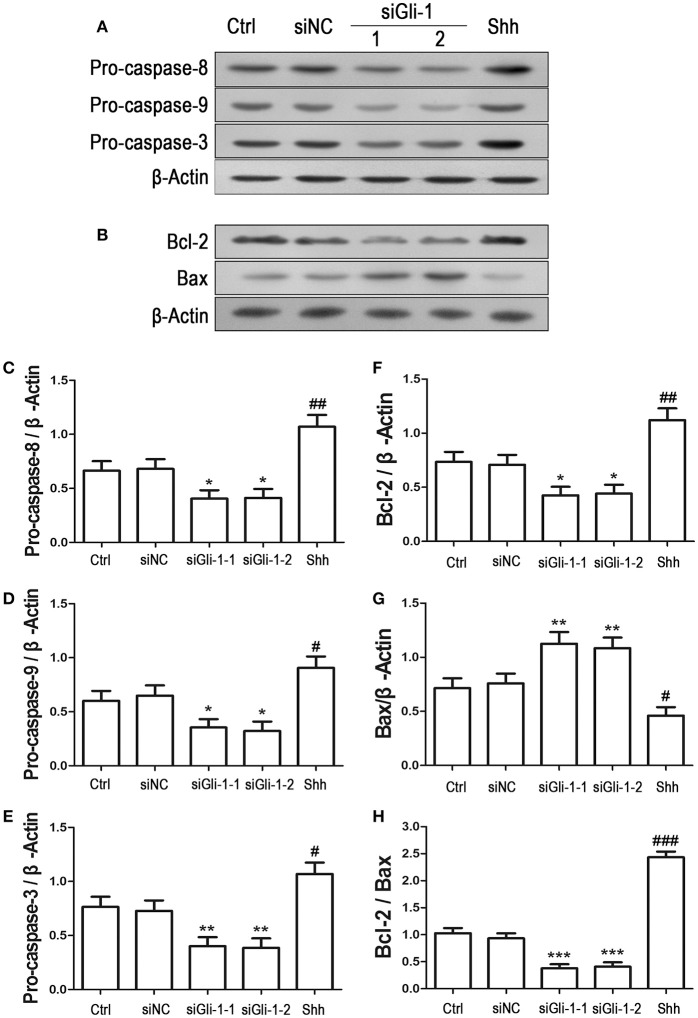 Effects of Gli-1 downregulation on the expression of apoptosis-related proteins in LN229 cells. (A,B) Cultured LN229 cells were transfected with non-specific siRNA (siNC) and two Gli-1-specific siRNAs (siGli-1-1 and siGli-1-2) for 24 h. Then, the expression of pro-caspase-8/9/3 (A) and Bcl-2/Bax (B) was determined by western blot (WB) analysis. Shh protein (5 μg/mL) was simultaneously added to the non-transfected LN229 cells as a positive control. (C–H) WB bands were quantified to generate the ratios of pro-caspase-8 (C) ,−9 (D) , and−3 (E) , Bcl-2 (F) , and Bax (G) to β-actin and the ratio of Bcl-2 to Bax (H) ; each statistical value represents the mean ± SD of three independent experiments ( n = 5). * P
