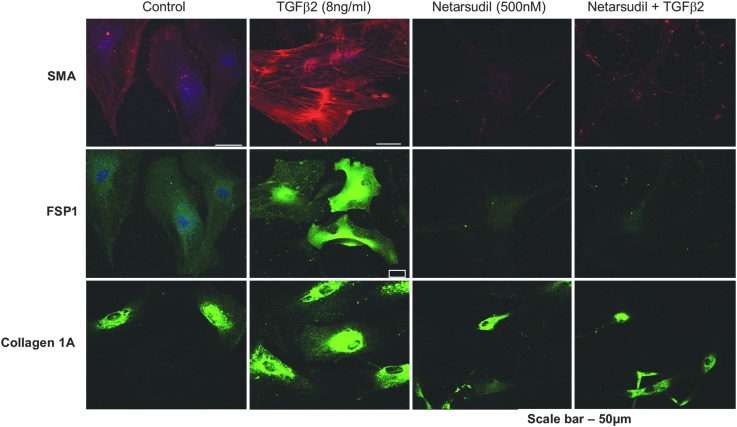 Netarsudil blocks the profibrotic effects of TGF-β on HTM cells. Serum-starved primary HTM cells incubated for 24 h in the presence of either vehicle, 8 ng/mL human TGF-β2, 500 nM netarsudil, or 8 ng/mL TGF-β2 plus 500 nM netarsudil were fixed and stained for the fibrogenic markers α-SMA, fibroblast-specific protein 1 (FSP1), and Collagen 1A. α-SMA, α-smooth muscle actin; HTM, human trabecular meshwork; TGF-β2, transforming growth factor-β2.