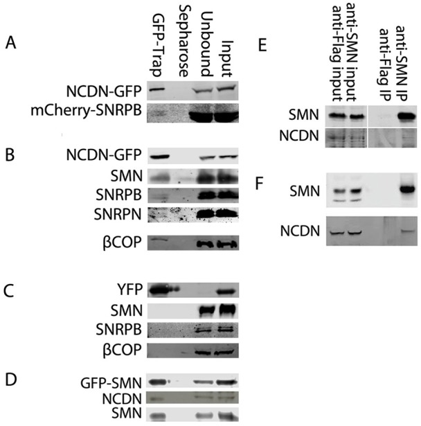 NCDN interacts with SNRPN, SNRPB and SMN in cell lines and in mice . (A) Affinity isolation of NCDN–GFP using GFP-Trap, detected with anti-GFP antibody (top row) co-enriches mCherry–SNRPB, detected with anti-mCherry (bottom row) in transiently co-transfected SH-SY5Y cells. (B) In an SH-SY5Y cell line constitutively expressing NCDN–GFP, affinity isolation of NCDN–GFP, detected with anti-GFP antibody (top row) co-enriches SMN, SNRPB, SNRPN and the coatomer protein βCOP, all detected with antibodies against the endogenous proteins (as labelled). (C) In an SH-SY5Y cell line constitutively expressing YFP, affinity isolation of YFP, detected with anti-GFP antibody (top row) does not co-enrich SMN, SNRPB or βCOP, all detected with antibodies to the endogenous proteins (as labelled). (D) In an SH-SY5Y cell line constitutively expressing GFP–SMN, affinity isolation of GFP–SMN, detected with anti-GFP antibody (top row) co-enriches endogenous NCDN, detected with anti-NCDN antibody (middle row). Endogenous SMN, detected with anti-SMN (bottom row) is also co-enriched. (E) Immunoprecipitation (IP) of endogenous SMN co-enriches endogenous NCDN in SH-SY5Y cells. (F) Immunoprecipitation of endogenous SMN from murine P8 brain lysate co-enriches NCDN.