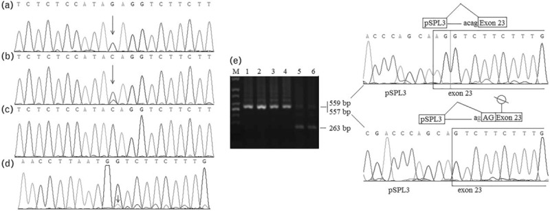 Identification of F8 gene mutation and analysis of its effect on mRNA splicing. (a) Sanger sequencing of the hemophilia A patient. (b) Sanger sequencing of the patient's mother. (c) Sanger sequencing of a normal control. (d) cDNA sequencing of the patient's mother. (e) Agarose gel electrophoresis and sequencing diagram of minigene assay. The circle with a slash indicates a premature termination codon in exon 23. Arrows indicate mutations. M, markers; lanes one and 2, recombinant contains mutated genomic DNA fragment, mutant-pSPLS; lanes three and 4, recombinant contains normal genomic DNA sequence, wild-type-pSPL3; lanes five and 6, empty pSPL3 plasmid.