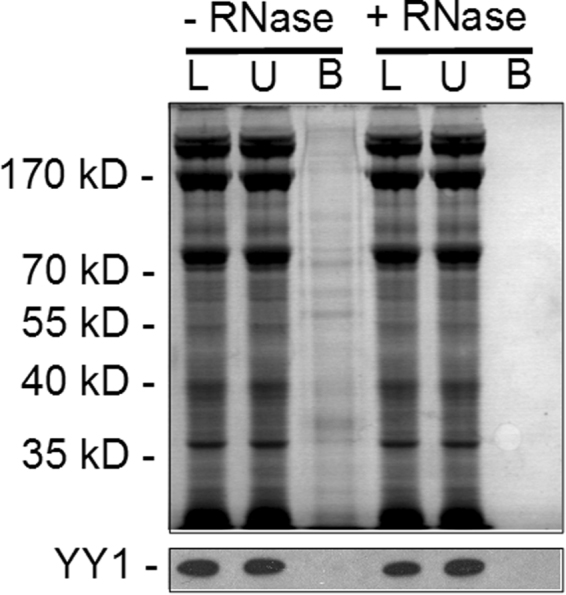 Isolation of Messenger Ribonucleoprotein Particles from  S. purpuratus  ova. Lysates of  S. purpuratus  ova were either untreated (−RNase) or treated with RNase A/T1 (+RNase) and applied to oligo-dT cellulose columns and the bound proteins analyzed by SDS-PAGE and visualized by staining with Coomassie brilliant blue (upper panel) or subjected to Western blotting with anti- Xenopus  YY1 antibody (lower panel). Fractions are indicated above the panel, L, load-on; U, unbound fraction; B, bound fraction. Positions of molecular mass markers and the YY1 band found upon Western blotting are indicated to the left of the panel.