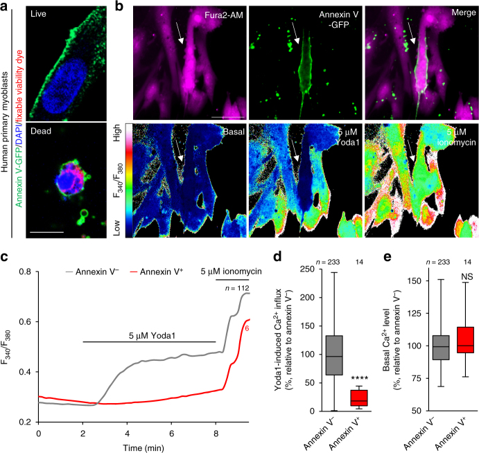 Impaired PIEZO1 activation in PS-exposing human primary myoblasts during myotube formation. a Detection of cell surface-exposed PS on differentiating human primary myoblasts by annexin V-GFP (PS, green), DAPI (nuclei, blue) and fixable viability dye (dead cells, red). b Fura2 imaging of Ca 2+ influx in annexin V-GFP-labelled human primary myoblasts (arrow) upon addition of Yoda1 and ionomycin. Representative traces ( c ), quantification of Yoda1-induced Ca 2+ influx ( d ) and basal Ca 2+ level ( e ) in b . **** P