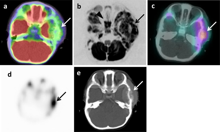 Metastasis in left temporal bone of skull of 1 year and 7 months old girl (patient 6). a 18 F-FDG PET/CT. b DWIBS. c 123 I-MIBG scintigraphy/SPECT-CT. d Bone scintigraphy/SPECT. e CT. Arrows show metastasis ( a – e ). Arrowhead shows false-positive images in sphenoidal bone ( b )