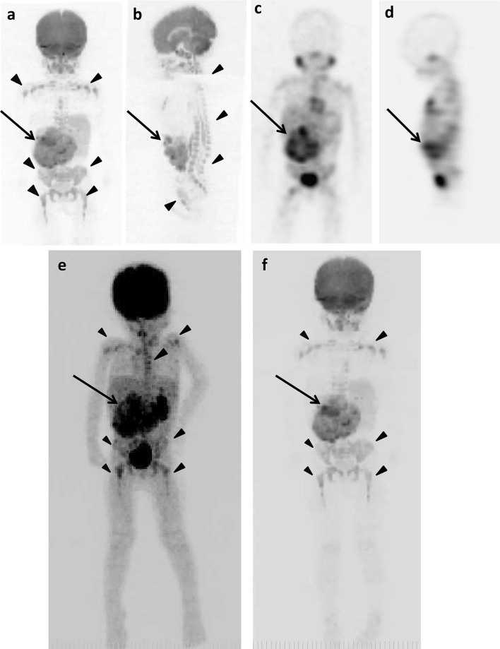The original lesions in right adrenal gland and false-positive images in various bone segments of 2 years and 9 months old girl (patient 1). a DWIBS (anterior). b DWIBS (lateral). c 123 I-MIBG scintigraphy/SPECT (anterior). d 123 I-MIBG scintigraphy/SPECT (lateral). The MIP of 18 <t>F-FDG</t> <t>PET</t> ( e ) and DWIBS ( f ). Long arrows show the original lesion ( a – f ). Arrowheads show false-positive images ( a, b, e, f )
