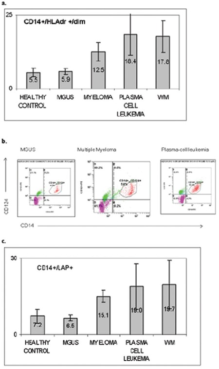 Flow-cytometry analysis of peripheral blood from patients with different plasma cell dyscrasias in comparison to healthy controls. a) Coexpression of CD14+/HLA-DR+dim. b) Coexpression of CD14+/CD124+, both representing the average of myeloid-derived suppressor cell (MDSC) percentage identified in the peripheral blood of each cohort. c) An example of fluorescence activated cell scanning analysis presenting peripheral blood infiltrated by MDSCs in monoclonal gammopathy of unknown significance, multiple myeloma, and plasma cell leukemia patients. MM: Multiple myeloma, MGUS: monoclonal gammopathy of unknown significance, MDSC: Myeloid-derived suppressor cell, LAP: latency-associated peptide, WM: Waldenström's macroglobulinemia.