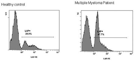 Flow-cytometry analysis of peripheral blood from patients with different plasma cell dyscrasias in comparison to healthy controls for the expression of latency-associated peptide (LAP) on monocytes. a) Coexpression of CD14+/ LAP+. Results represent the average percentage identified in the blood of each cohort. b) An example of fluorescence activated cell scanning analysis presenting peripheral blood infiltrated by monocytes/LAP+ cells in a healthy control and a multiple myeloma patient. LAP: Latency-associated peptide.