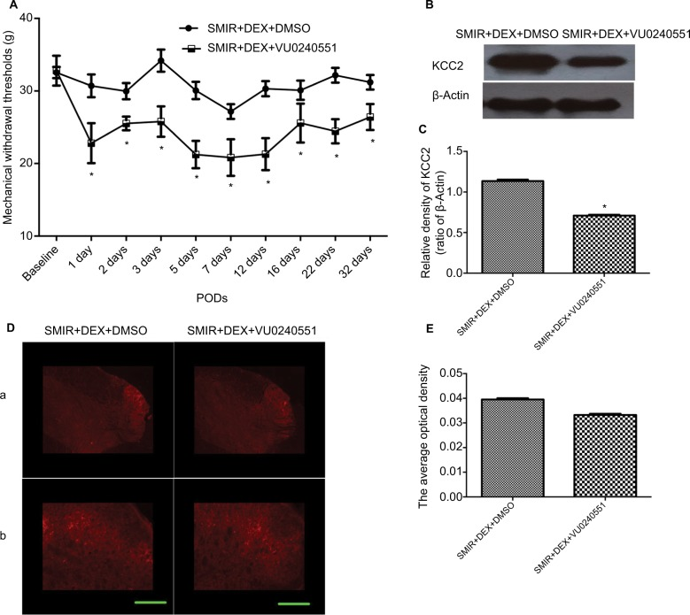 KCC2 inhibitor VU0240551 intrathecally administered at 15 min presurgery and at PODs 1–3 reduced the effect of DEX on SMIR rats. Notes: ( A ) The influence of VU0240551 on the analgesic effect of DEX in SMIR-induced PPSP rats. ( B and C ) KCC2 expression in the SMIR + DEX + VU0240551 group was significantly inhibited compared with the SMIR + DEX + DMSO group. ( D and E ) KCC2 expression in the ipsilateral spinal dorsal horn (a) and KCC2 expression in the superficial dorsal horn layers (b). Magnification: a =50× and b =400×. Scale bar: 20 mm. * P