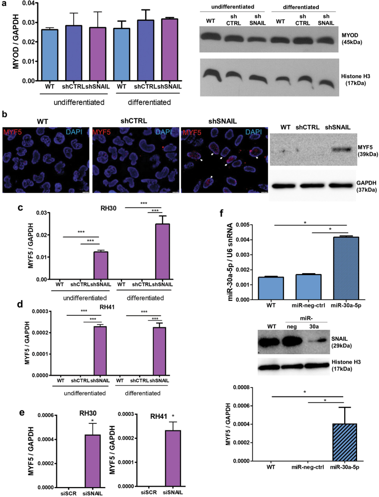 SNAIL silencing induces MYF5 expression in ARMS cells. a SNAIL silencing does not significantly affect MYOD expression at the mRNA (qPCR, n = 3) or protein level (Western blot) in undifferentiated RH30 cells and RH30 cells differentiated for 7 days in medium with 2% HS. b MYF5 is expressed in the nuclei of RH30 shSNAIL cells. The MYF5 protein level was visualized by Western blot and by immunofluorescent staining (red color), and the nuclei were visualized with DAPI (blue). The results are presented as merged images. The white scale bar represents 10 μm. c SNAIL silencing induces the expression of MYF5 mRNA in both undifferentiated RH30 cells and RH30 cells differentiated for 7 days in medium with 2% HS (qPCR, n = 3) d SNAIL silencing slightly induces the expression of MYF5 mRNA in both undifferentiated RH41 cells and RH41 cells differentiated for 7 days in medium with 2% HS (qPCR, n = 3). e Transient SNAIL silencing with siRNA in RH30 and RH41 ARMS cell lines slightly induces MYF5 expression. The cells were transfected with siRNA against SNAIL (siSNAIL) and a scrambled siRNA sequence (siRNA). Twenty-four hours after transfection, the cells were treated with differentiating medium containing 2% HS for the following 48 h. MYF5 levels were validated by qPCR; n = 3. f Transfection with pre-miR-30a-5p in RH30 cells induces MYF5 expression by downregulation of SNAIL protein. RH30 cells were transfected with the miRNA precursor pre-miR-30a-5p and pre-miR negative control (miR-neg-ctrl). Twenty-four hours after transfection, the cells were treated with differentiating medium containing 2% HS for the following 48 h. miR-30a-5p expression relative to U6 snRNA and MYF5, MYOD expression relative to GAPDH were validated by qPCR; n = 4. SNAIL protein level was validated by Western blot. The data represent the mean ± SEM. * p
