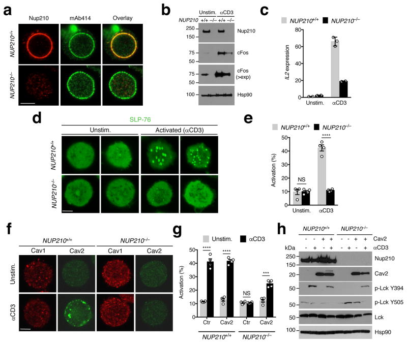 Nup210 is required for the TCR-dependent induction of Cav2 expression ( a ) Immunofluorescence analysis of Nup210 and mAb414 in NUP210 +/+ or NUP210 −/− J14 SLP-76-EYFP cells. ( b ) Immunoblot analysis of Nup210 and cFos in resting and soluble anti-CD3-activated NUP210 +/+ or NUP210 −/− J14 SLP-76-EYFP cells. Hsp90 was used as loading control ( > exp: higher exposure). ( c ) qPCR analysis of Il2 mRNA levels in resting or soluble anti-CD3-activated NUP210 +/+ or NUP210 −/− J14 SLP-76-EYFP cells. Il2 expression was normalized to Hprt1 . ( d ) Immunofluorescence analysis of SLP-76 clustering on the surface of unstimulated or anti-CD3-activated NUP210 +/+ or NUP210 −/− J14 SLP-76-EYFP cells. ( e ) The percentage of cells with SLP-76 foci from (d) was quantified. ( f ) Immunofluorescence analysis of Cav1 and Cav2 in unstimulated or anti-CD3-activated NUP210 +/+ or NUP210 −/− J14 SLP-76-EYFP cells. ( g ) The percentage of activated (SLP-76 cluster-positive cells) NUP210 +/+ or NUP210 −/− J14 SLP-76-EYFP cells expressing control (empty vector) or Cav2 was quantified after stimulation with soluble anti-CD3. ( h ) Immunoblot analysis of Nup210, Cav2, p-Lck Y394, p-Lck Y505, and total Lck in unstimulated or anti-CD3-activated NUP210 +/+ or NUP210 −/− J14 SLP-76-EYFP cells expressing control or Cav2. Hsp90 was used as loading control. ( a , b , d,f ) representative of three independent experiments; ( c ) mean ± s.d., each symbol represents a technical replicate n = 3, representative of three independent experiments; ( e , g ) mean ± s.e.m, pooled from four independent experiments, n = 4 biological samples, n ≥ 200 cells per group; ( h ) representative of two independent experiments. NS, not significant ( P > 0.05); * P ≤ 0.05, ** P ≤ 0.01, *** P ≤ 0.001, **** P ≤ 0.0001 (two-tailed unpaired Student's t -test). Scale bar: 5 μm.