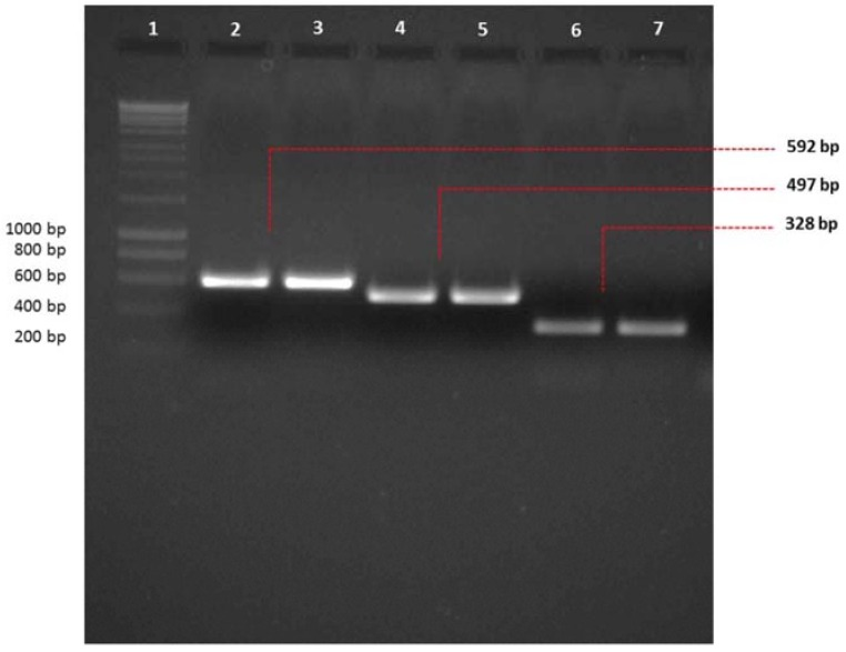 Conventional PCR to check amplicon size prior to multiplex PCR. Amplicon sizes were checked on two percent agarose gel prior to performing multiplex PCR for A. fumigatus dsRNA mycoviruses. AfuCV, AfuPV-1 and AfuTmV-1 dsRNAs were extracted using LiCl extraction (Lanes 2, 4 and 6, respectively) and RNeasy Plant Mini kit (Lanes 3, 5 and 7, respectively) and used as templates for amplification with AfuCV, AfuPV-1 and AfuTmV-1 primers (2–3, 4–5, 6–7, respectively). Hyperladder-I was used as a marker to estimate the size of the amplicons (Lane 1).