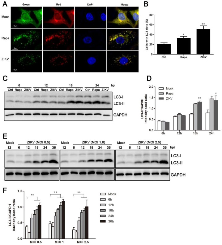 ZIKV induces autophagy in HUVEC. ( A ) Confocal microscopy. HUVEC were infected with lentivirus expressing mTagRFP-mWasabi-LC3 followed by treatment at 48 h post-infection with mock treatment as a negative control, rapamycin (100 nM) treatment as a positive control, or infection of ZIKV (MOI = 1) for 24 h. The cells were observed by confocal microscopy with scale bars indicating 10 µm; ( B ) percent of cells with LC3 dots from total LC3-expressing cells was calculated. Data were derived from at least 100 cells for each sample. * p
